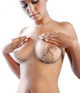 Levantamiento de senos o aumento de senos