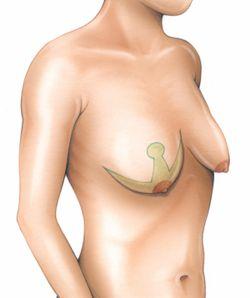 Se il petto dopo un mammoplastika fa male